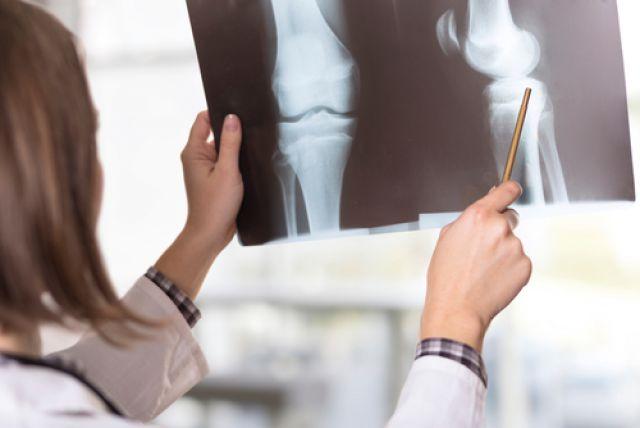 Берут ли в армию с артритом коленного сустава