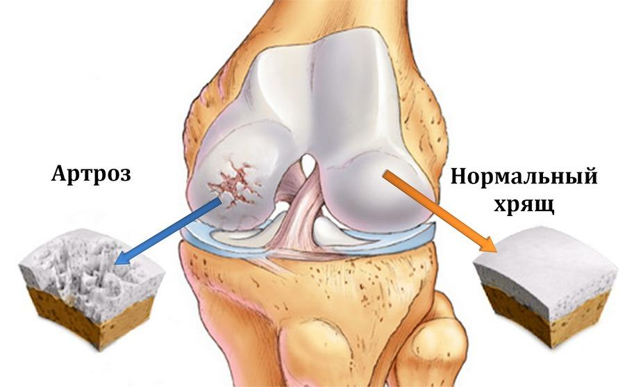 аппарата выпадения межпозвоночных дисков грыж болей суставах растяжениях вывихах ревматиз