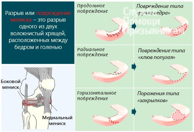 povrezhdenie-meniska-kolena