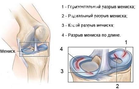 Артроз 1-2 степени коленного сустава берут ли в армию инфекционные заболевания тазобедренного сустава