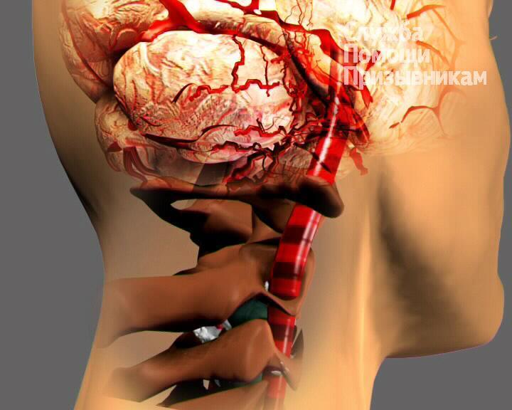Можно ли учиться в высшем военном училище с диагнозомврожденная гиппоплазия почки