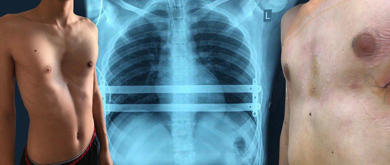 Берут ли в армию с деформацией грудной клетки