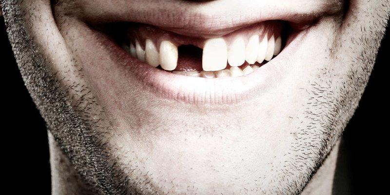 берут ли в армию с плохими зубами